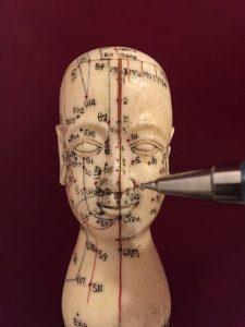 l'acupuncture une méthode chinoise pour se soigner