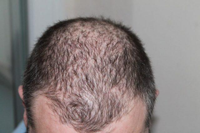 La tricopigmentation, une solution contre la perte de cheveux