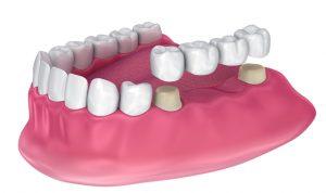 Bridge dentaire pour remplacer les dents manquantes