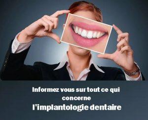 Informez-vous sur tout ce qui concerne l'implant dentaire